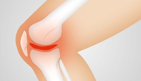 How to Prepare for Knee Surgery
